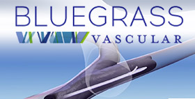 BLUEGRASS VASCULAR TECHNOLOGIES TO COMMERCIALIZE ITS MEDICAL DEVICE